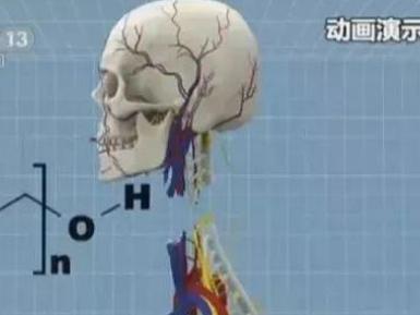 原卫生部副部长:中国绝不允许现在进行头颅移植