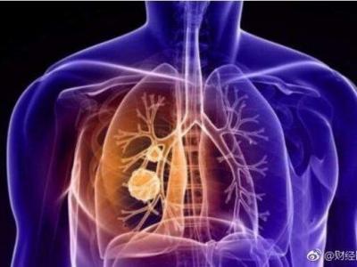 肺癌、乳腺癌分别居中国男性、女性肿瘤发病首位