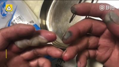 视频 | 心疼,环卫工除夕夜清垃圾,双手被强酸腐蚀