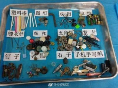 电池、图钉、塑料棒……相信吗?这些都是孩子体内的异物!