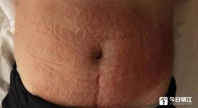 满心欢喜去消妊娠纹,不料却把肚皮搞成了这幅模样......