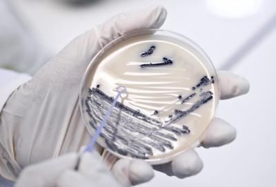 新方法有助找到与癌症相关的病原体