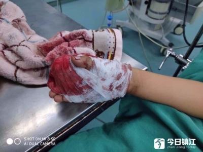 心疼!扬中一名六岁娃摔倒手被玻璃割伤……