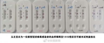 钟南山指导研发快速检测试剂盒:15分钟内可取结果