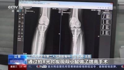 在国外做断骨增高手术感染,22岁患者恐终身残疾